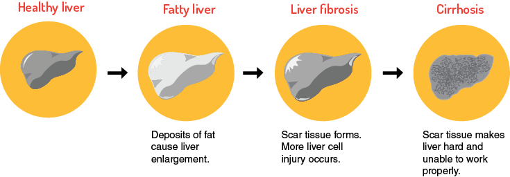 cirrhosis of the liver the oregon clinic