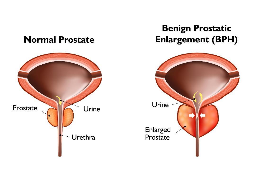 Prostati Hyperplasia Tour