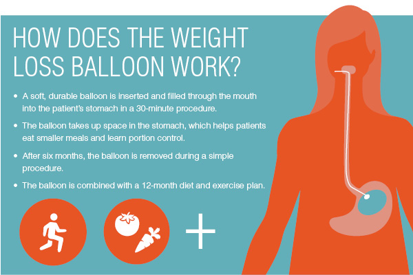 Weight Loss Balloon The Oregon Clinic